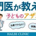 アザ・シミ治療は乳児から大人まで可能です